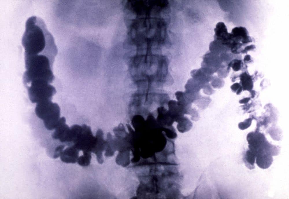 باحثون يُحذرون من تزايد معدلات الإصابات بسرطان القولون والمستقيم عند الشباب