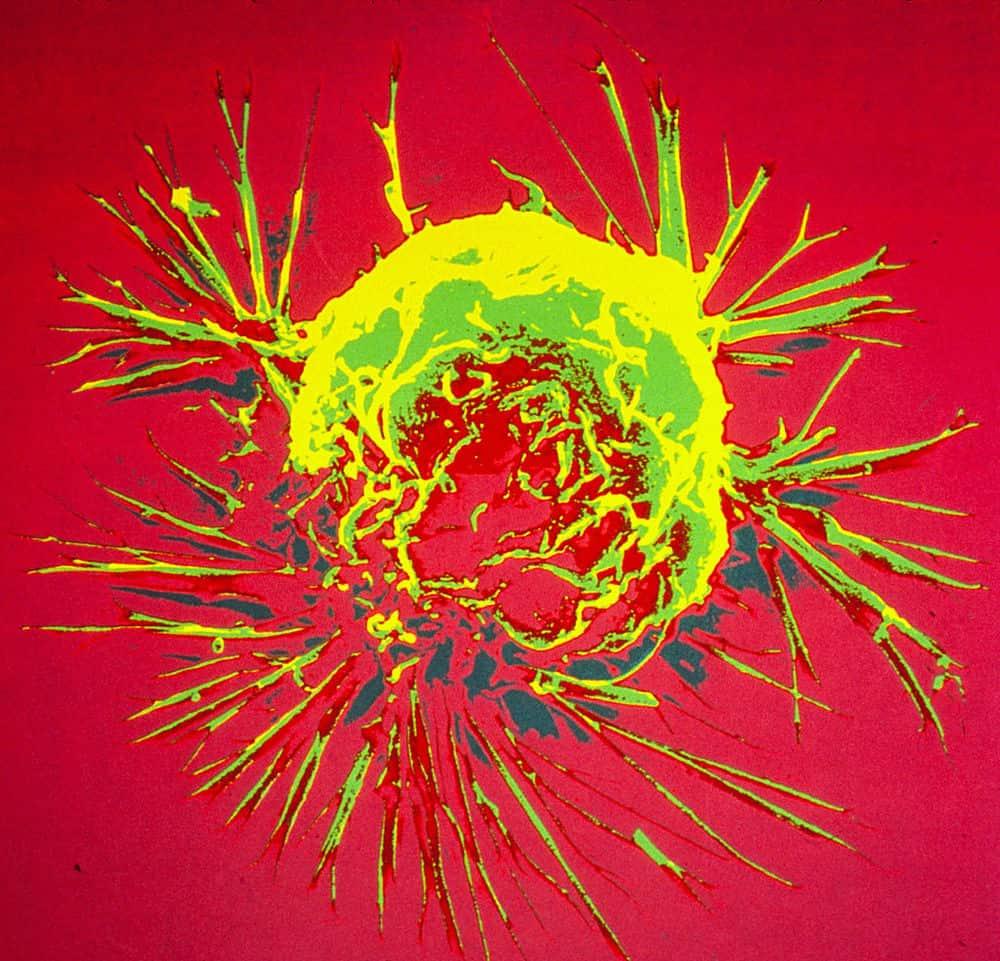ثلثي طفرات السرطان تنتج عن الأخطاء العشوائية في الحمض النووي