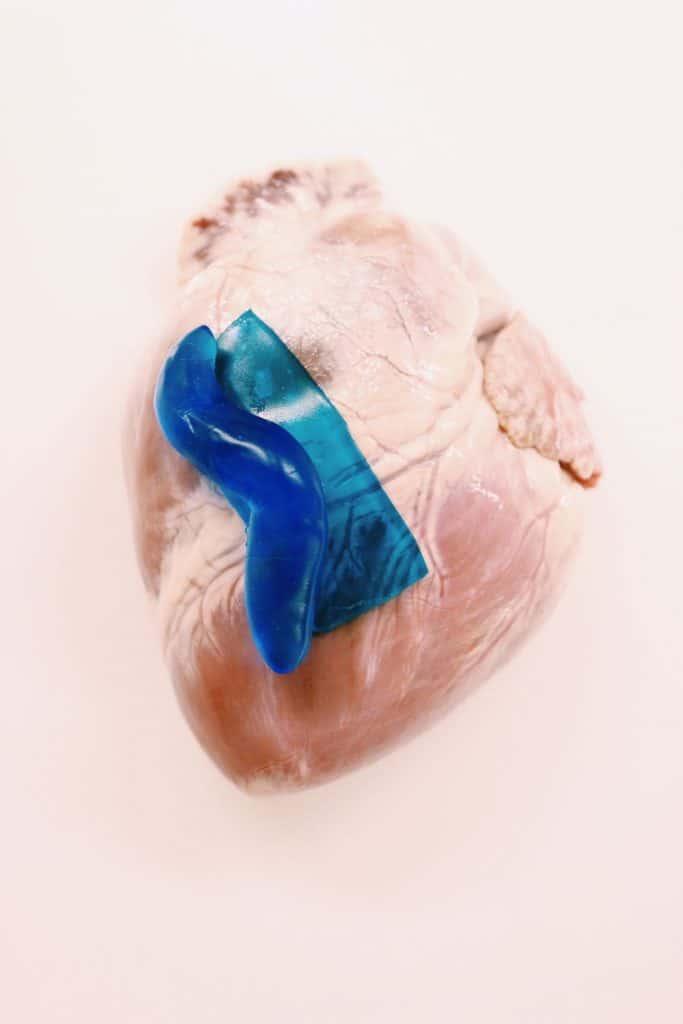 جراحو المستقبل قد يستخدمون إفرازات البزاقة الاصطناعية كضماد