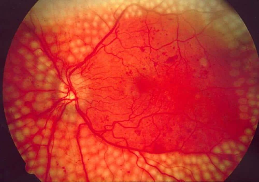 جوجل تستخدم تقنيتها في التعلم العميق لتشخيص الأمراض