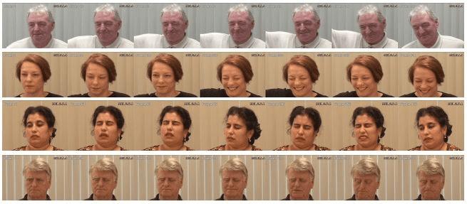 خوارزمية قادرة على تمييز الألم من ملامح وجهك
