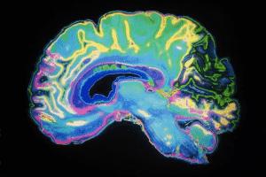اضطراب الوسواس القهري واختلال أنشطة الدماغ