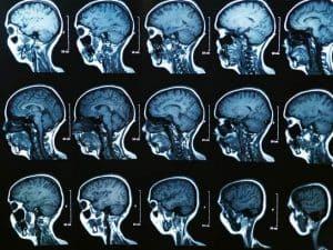 يتسبب الارتجاج بتغيرات دائمة في الدماغ حتى بعد الشعور بالتعافي