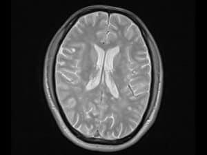 جزء صغير من الدماغ يمكنه أن يقدم أدلة حول الإدمان