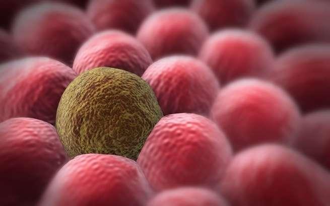 نحن نتقدم في الكشف عن السرطان، فهل من مشكلة في ذلك؟