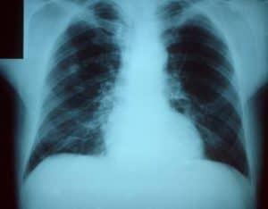 كيف يموت الناس من الإنفلونزا؟