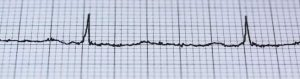 النوبات القلبية تبدو أكثر شيوعاً بعد التغيرات الشديدة لدرجات الحرارة