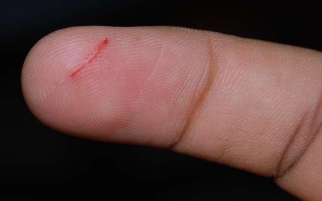 لماذا تكون الجروح الناجمة عن الورق مؤلمة جداً؟