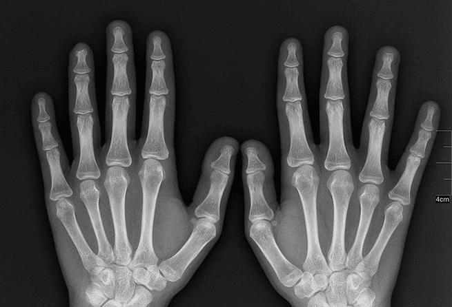 العلماء يعيدون التألق للأشعة السينية