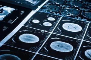 الأشعة السينية يمكن أن تقدّم أدلة حاسمة للكشف عن العنف المنزلي