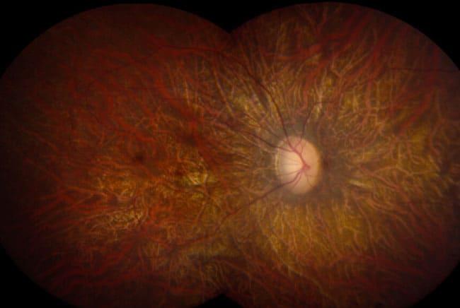 شكبية العين, العمى, الإبصار, النظر, تقنية, علوم