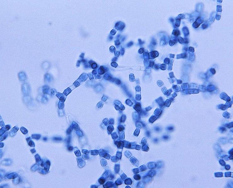 قد يؤدي التغير المناخي إلى انتشار أحد الأمراض الفطرية القاتلة