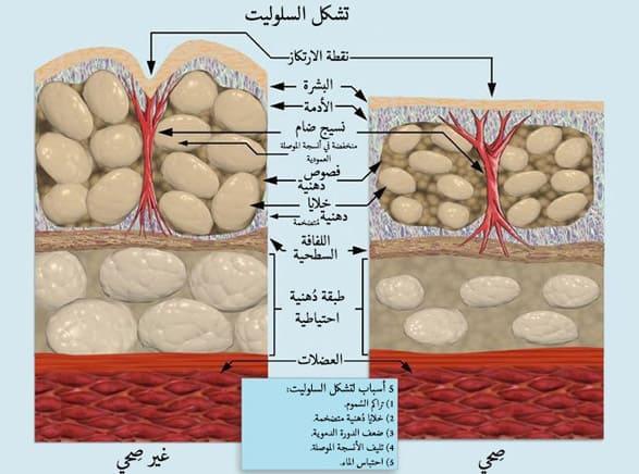 السيلوليت, صحة, دهون, تمارين التخلص من السيلوليت