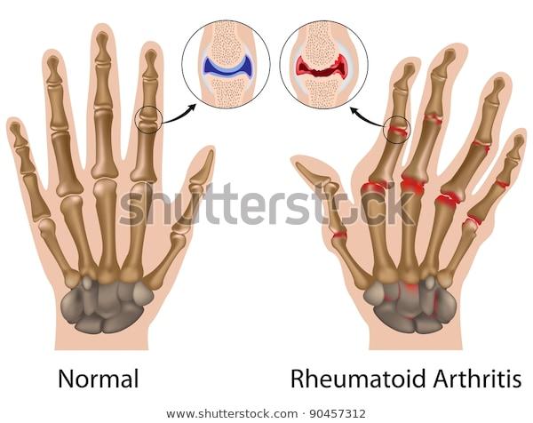 التهاب المفاصل الروماتيدي