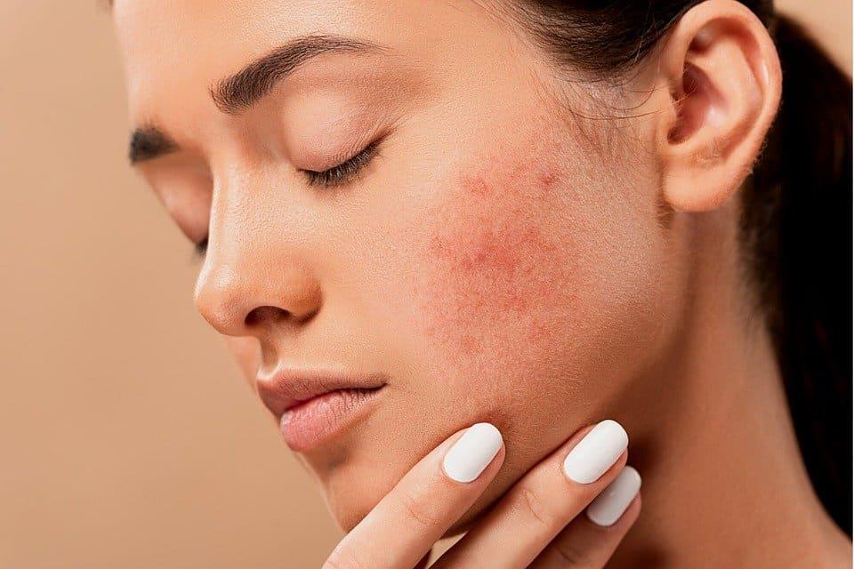 يجنب الشيخوخة: التوصل إلى سر تجديد خلايا الجلد