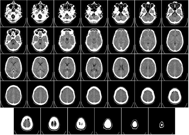 هل تتغير استجابة دماغنا حسب توجهنا السياسي؟