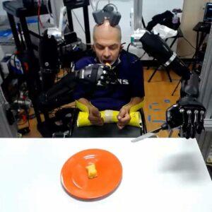 أذرع صناعية ذكية تبث الأمل في مريض الشلل الرباعي