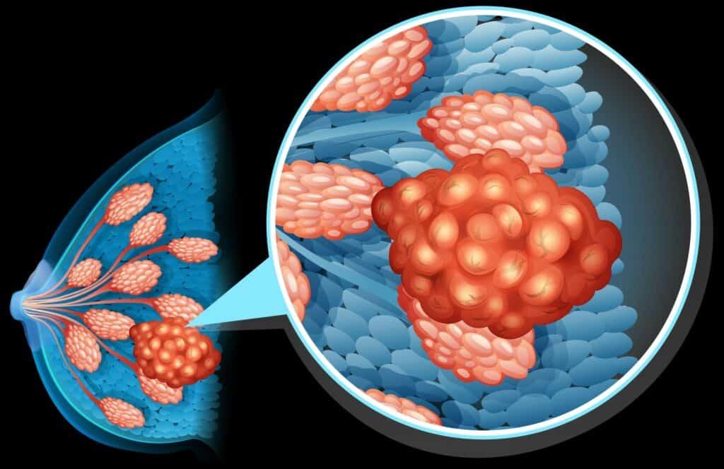 بدون آثار جانبية: علاج جديد لسرطان الثدي بالهرمونات الذكورية