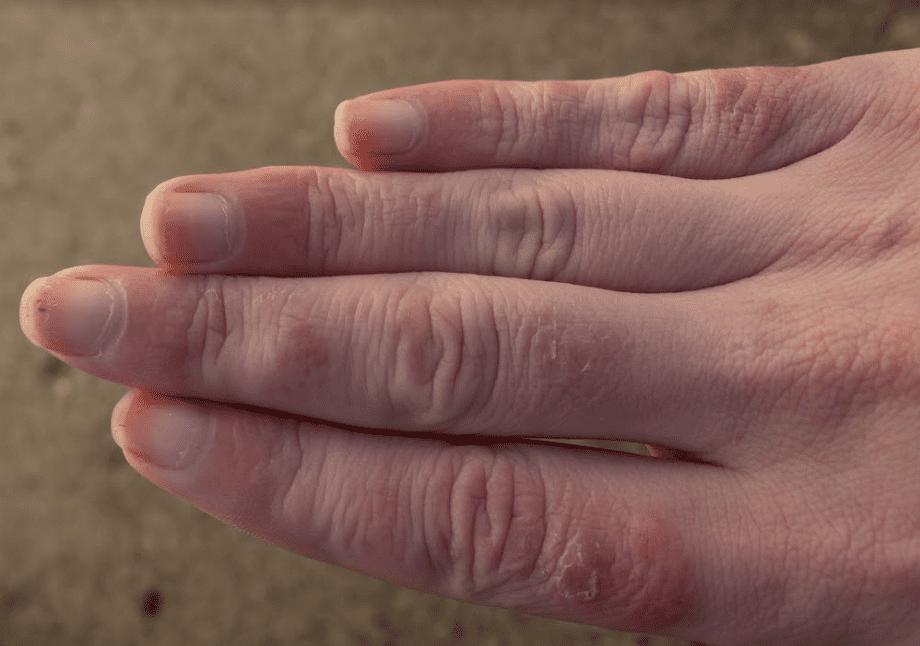 أطرافنا لا تفضل البرودة: أسباب وعلاج تورم الأصابع في الشتاء