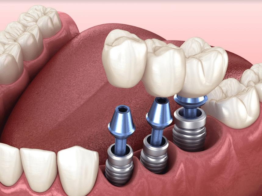 زراعة الأسنان: حل دائم لمشكلة لا يجب تجاهلها
