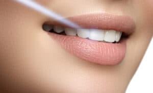 بنسبة 50%: منتجات تبييض الأسنان تقتل خلايا اللب