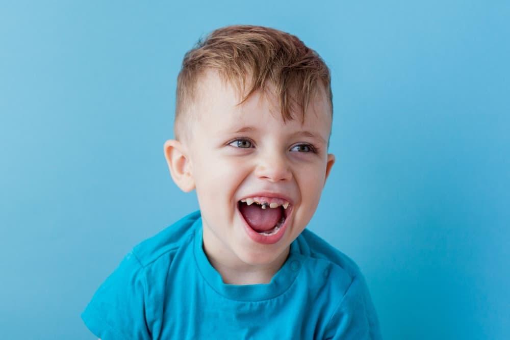 ما يجب أن تعرفه عن تسوس أسنان الأطفال وعلاجه