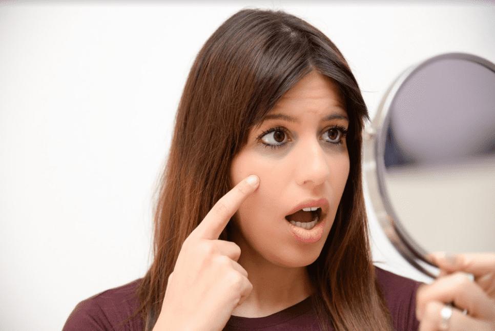 آتٍ إلى ظل عينيك: أسباب الهالات السوداء وكيفية التخلص منها
