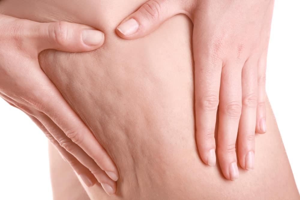 يصيب أكثر من 85% من النساء: إليك كيفية التخلص من السيلوليت