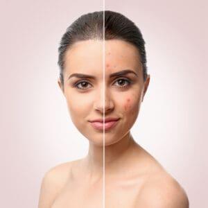 حبوب الوجه المزعجة: تعرف إلى أسبابها وطرق التخلص منها