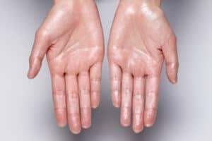 بين الأمراض الخطيرة واللاشيء: طرق التخلص من الرطوبة في الجسم