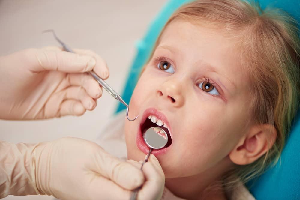 تسوس أسنان الأطفال