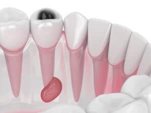 يسبب تلوث الدم: خرّاج الأسنان وعلاجه