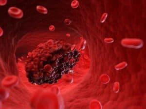 فيروس كورونا يسبب جلطات خطيرةً في الذراعين