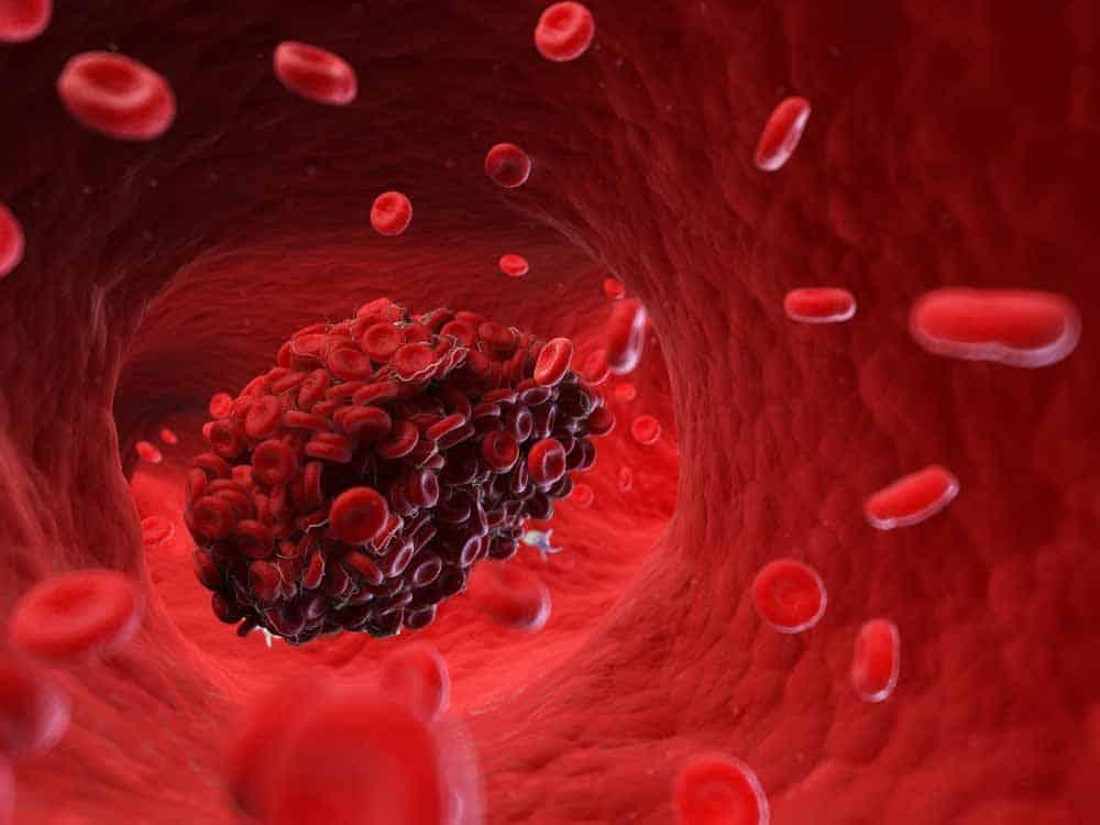 قد يكون كوفيد-19 مرتبطاً بحدوث جلطات دموية أكثر مما نعتقد