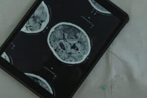 كيف خاض الأطباء رحلة العلاج النفسي بواسطة عمليات المخ الدقيقة؟